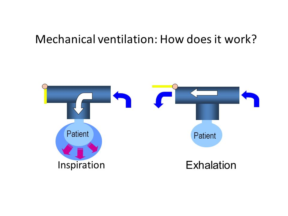 Mechanical ventilation: How does it work