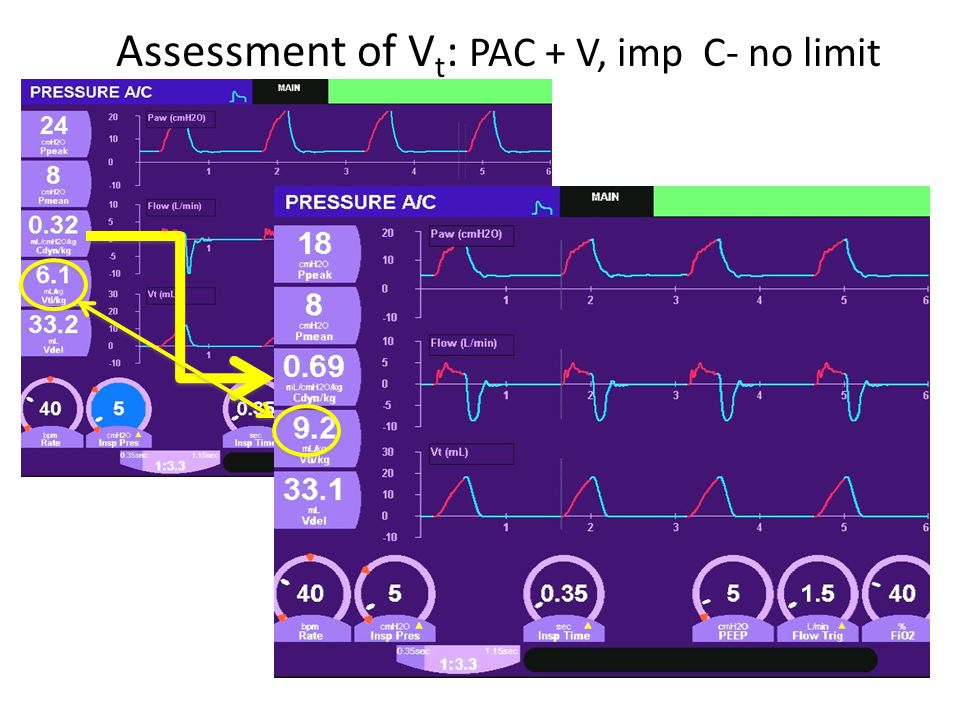 Assessment of Vt: PAC + V, imp C- no limit