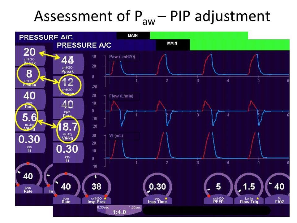 Assessment of Paw – PIP adjustment
