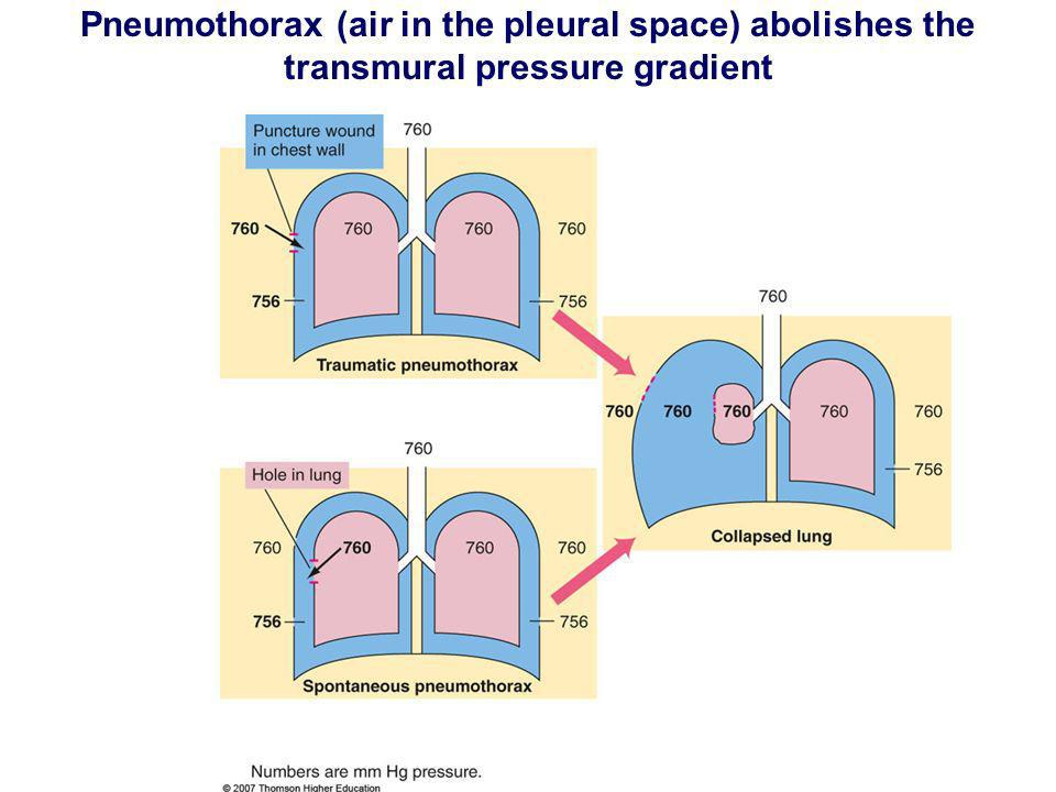 Pneumothorax (air in the pleural space) abolishes the transmural pressure gradient