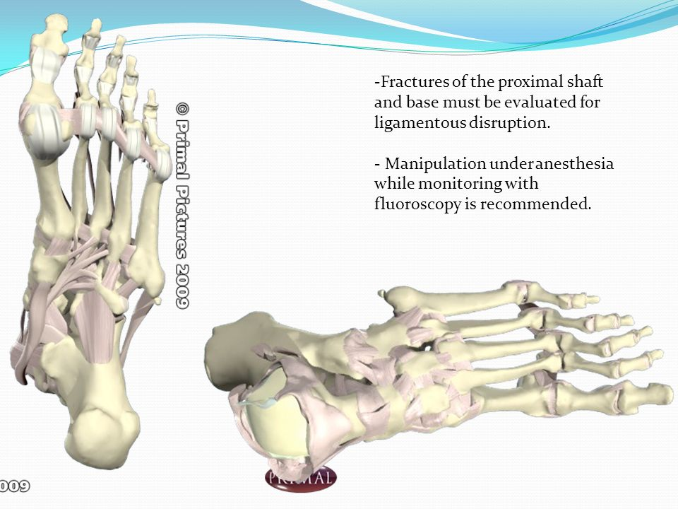 -Fractures of the proximal shaft and base must be evaluated for ligamentous disruption.