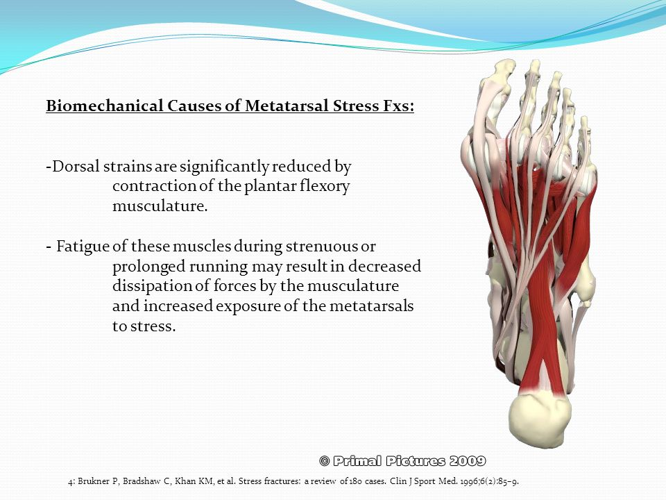 Biomechanical Causes of Metatarsal Stress Fxs: