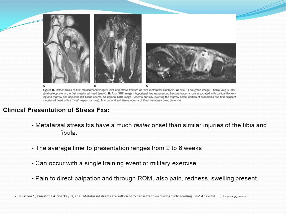 Clinical Presentation of Stress Fxs: