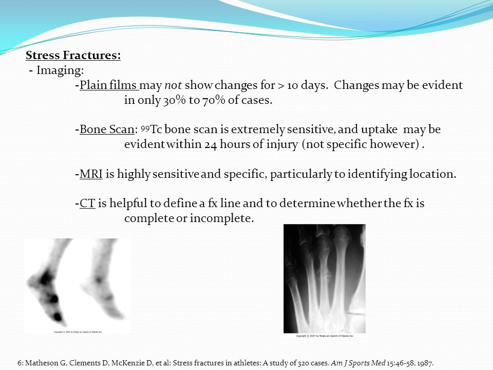Stress Fractures: - Imaging: