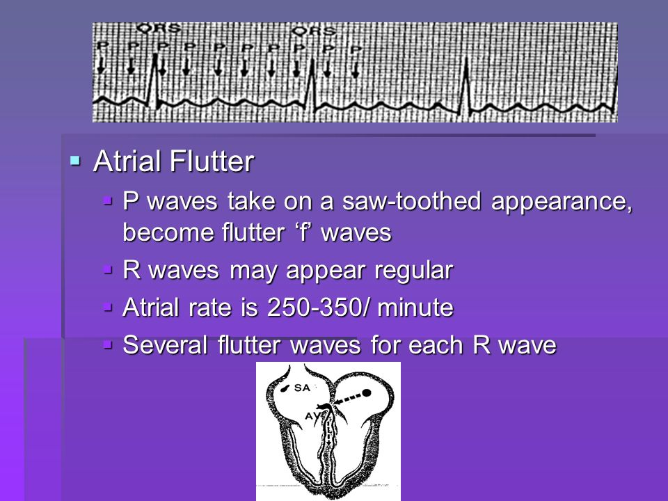 Atrial Flutter P waves take on a saw-toothed appearance, become flutter 'f' waves. R waves may appear regular.