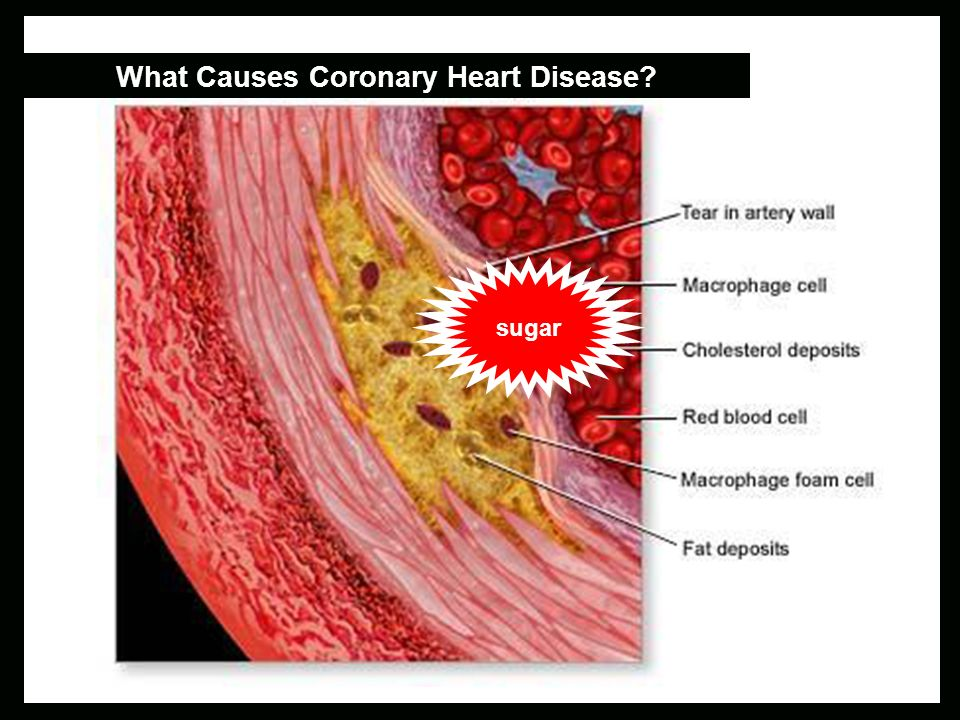 What Causes Coronary Heart Disease