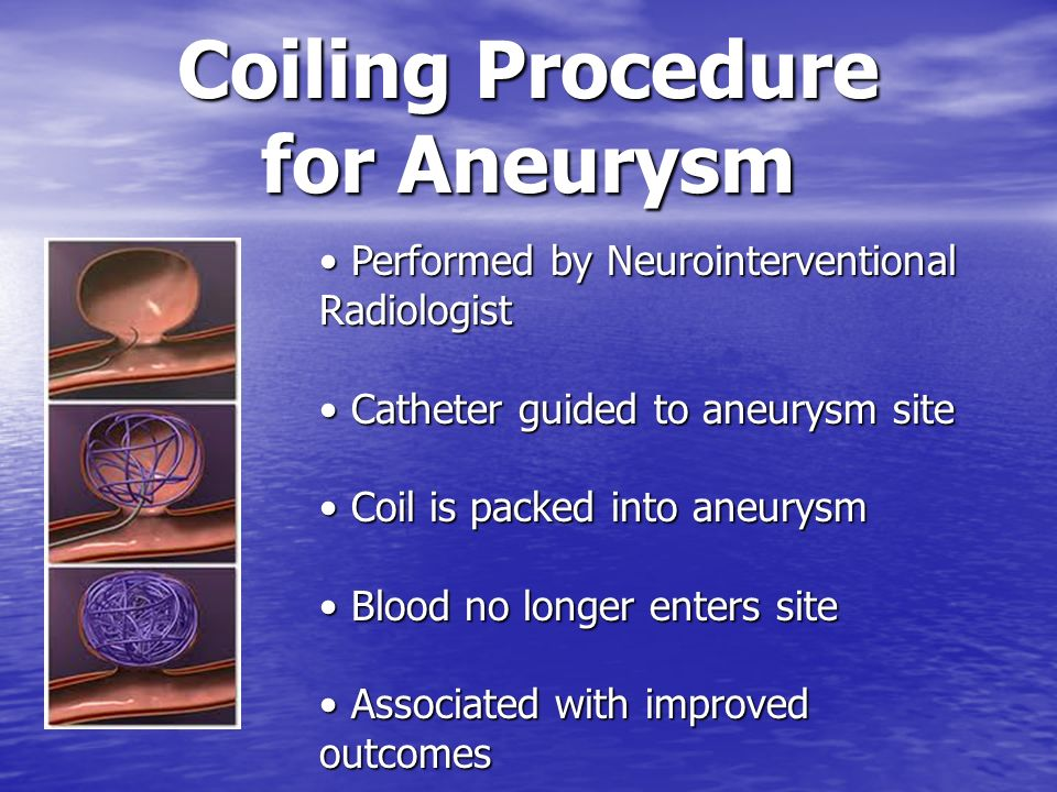 Coiling Procedure for Aneurysm