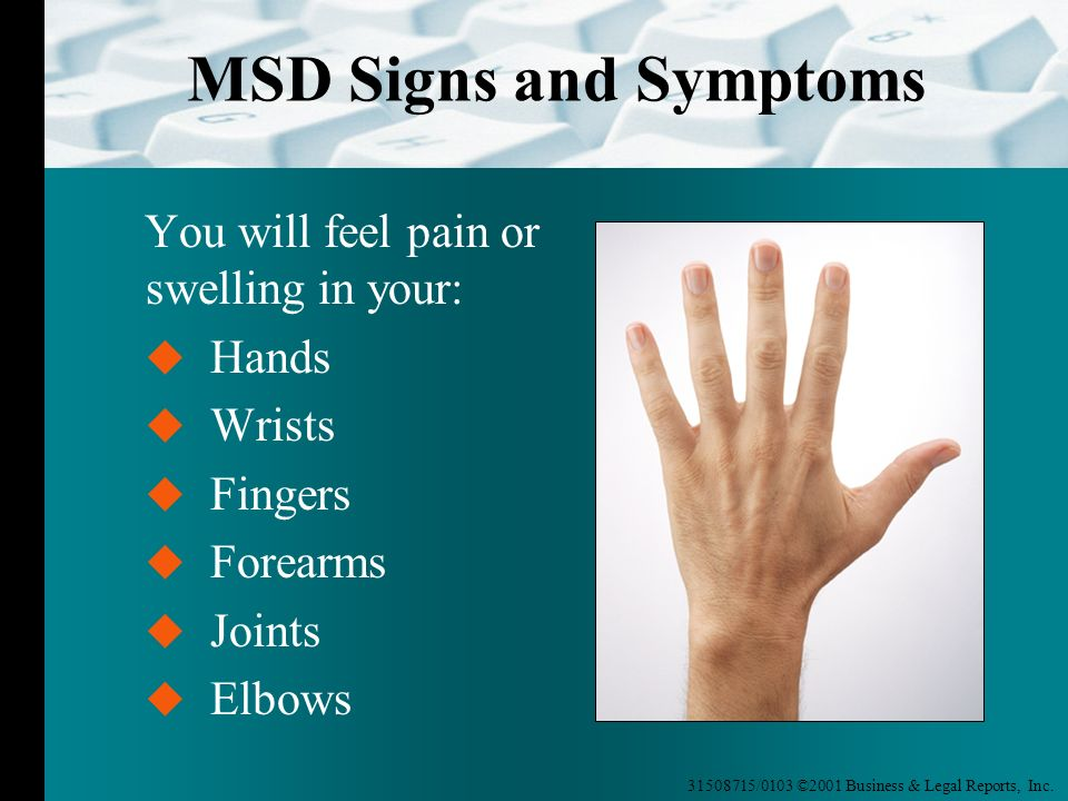 MSD Signs and Symptoms You will feel pain or swelling in your: Hands