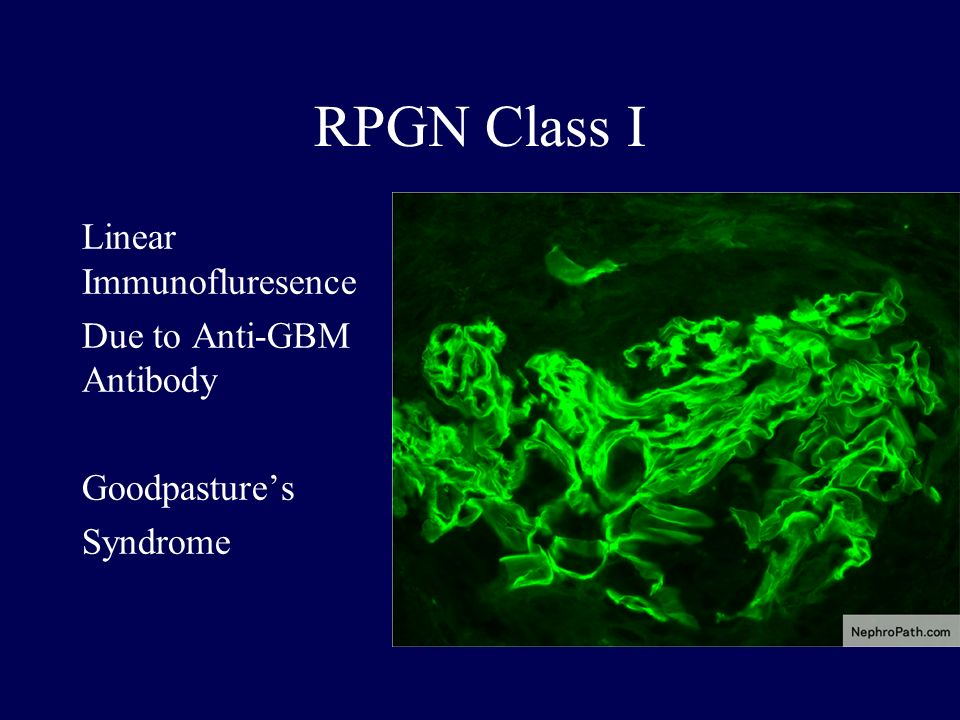 RPGN Class I Linear Immunofluresence Due to Anti-GBM Antibody