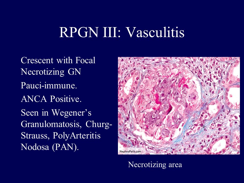 RPGN III: Vasculitis Crescent with Focal Necrotizing GN Pauci-immune.