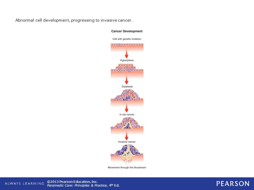 Abnormal cell development, progressing to invasive cancer.