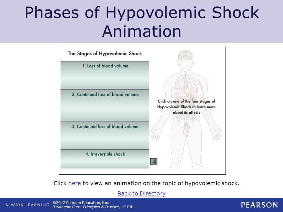 Phases of Hypovolemic Shock Animation