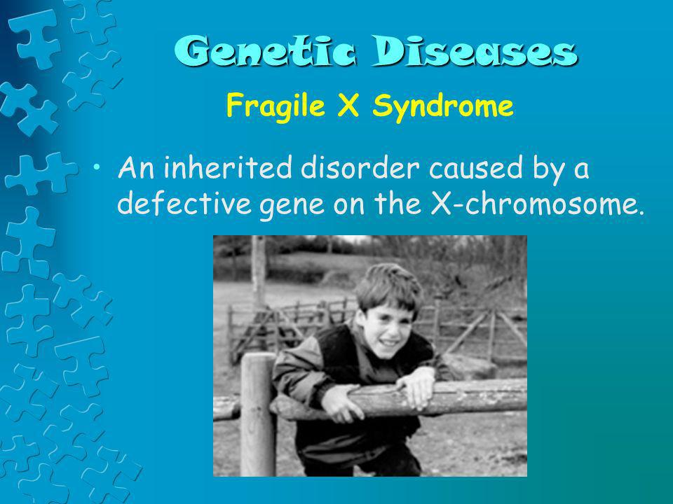 Genetic Diseases Fragile X Syndrome
