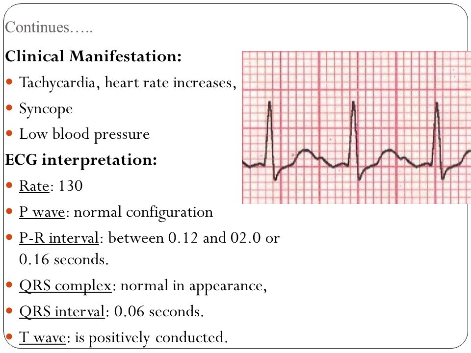 Clinical Manifestation: Tachycardia, heart rate increases, Syncope