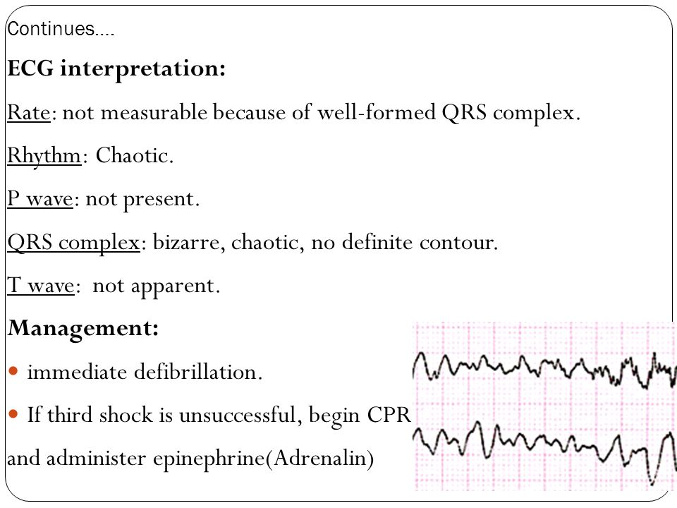 Rate: not measurable because of well-formed QRS complex.