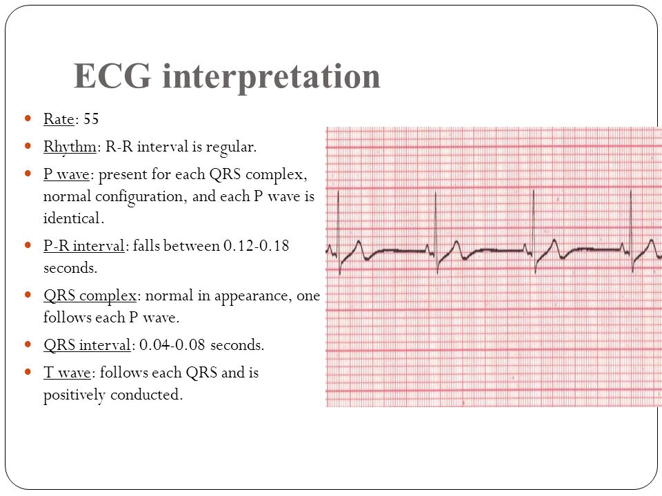 ECG interpretation Rate: 55 Rhythm: R-R interval is regular.