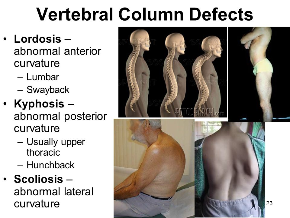 Vertebral Column Defects