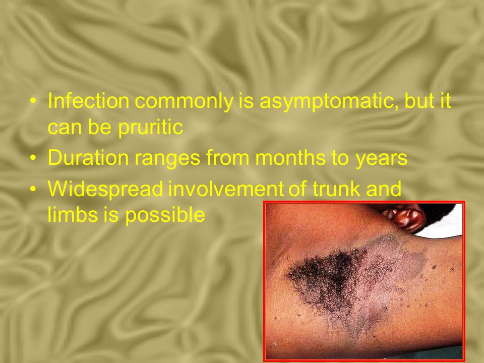 Infection commonly is asymptomatic, but it can be pruritic
