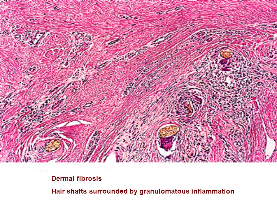Dermal fibrosis Hair shafts surrounded by granulomatous inflammation