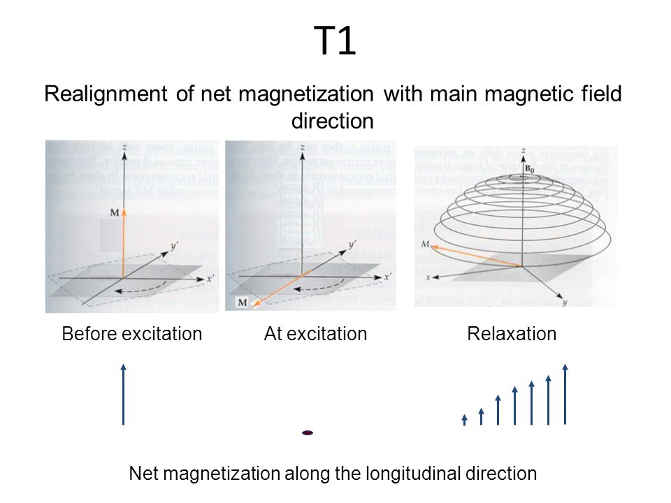 Realignment of net magnetization with main magnetic field direction