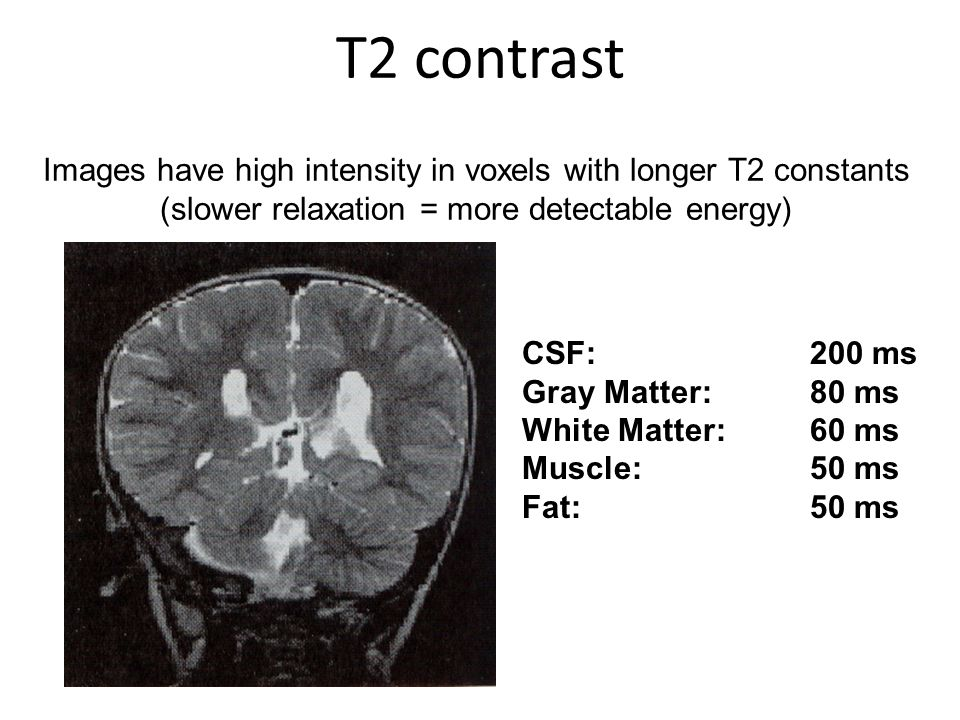 T2 contrast Images have high intensity in voxels with longer T2 constants (slower relaxation = more detectable energy)