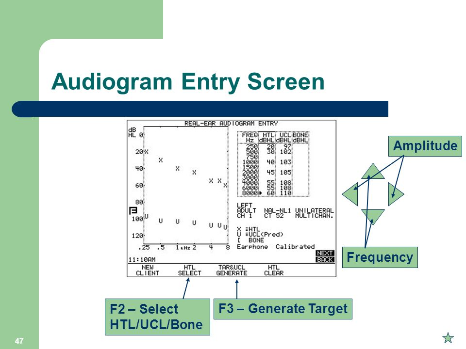 Audiogram Entry Screen