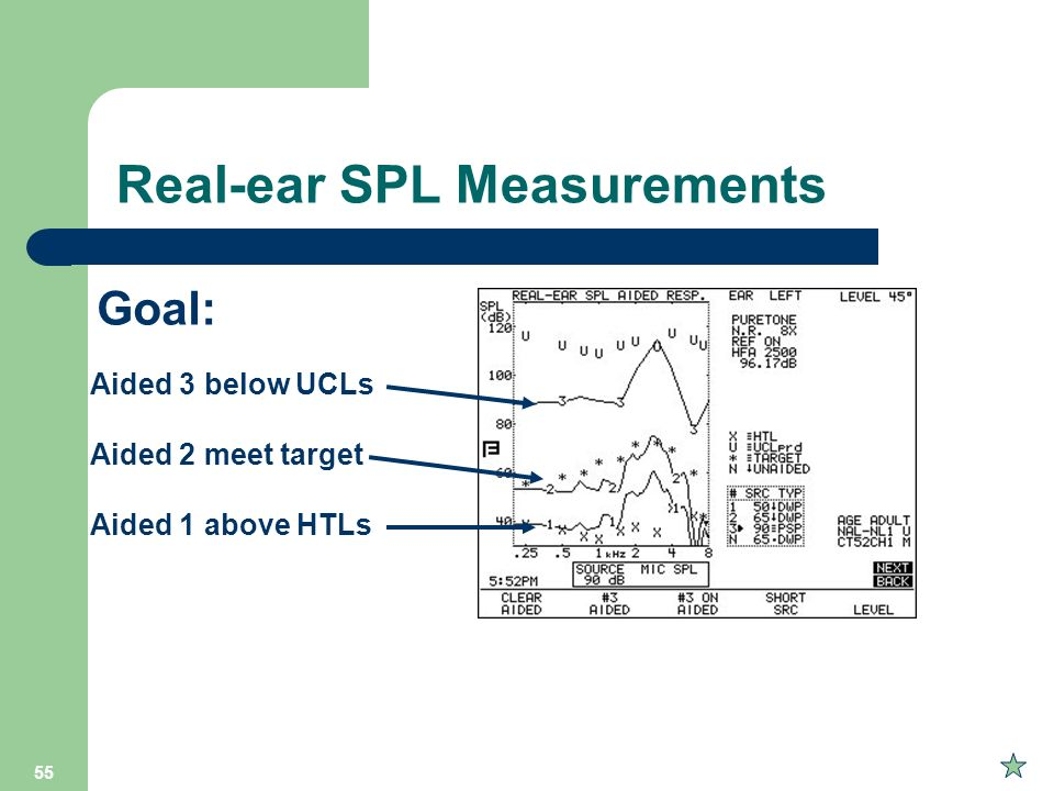 Real-ear SPL Measurements