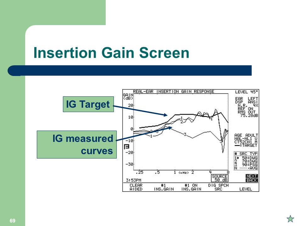 Insertion Gain Screen IG Target IG measured curves