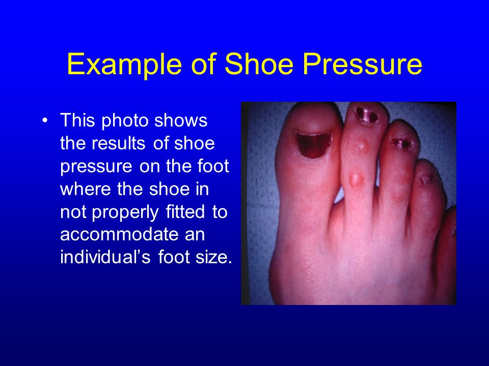 Example of Shoe Pressure