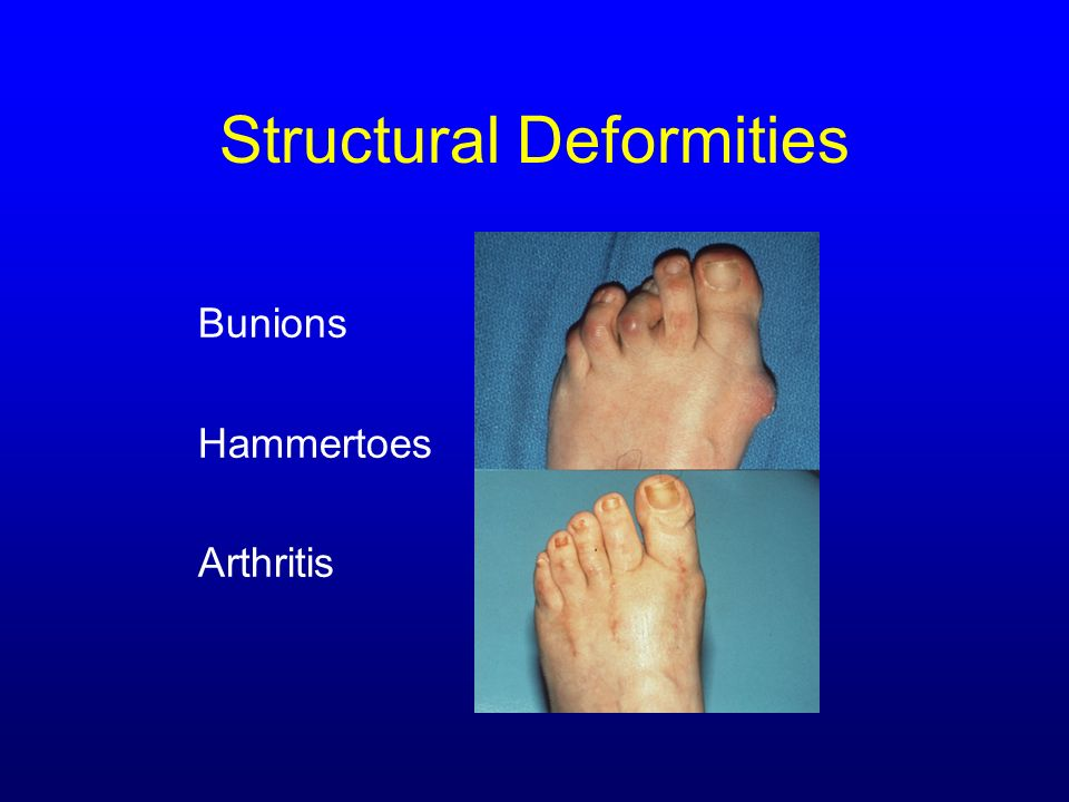 Structural Deformities