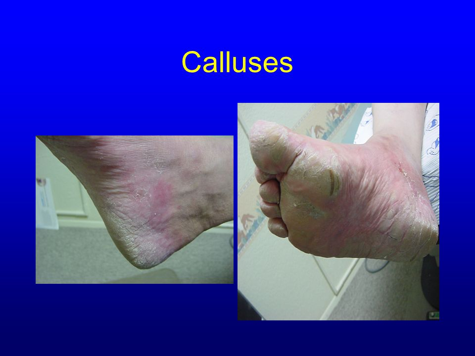 Calluses Courtesy of Dr. Barbara J. Aung, DPM,CWS
