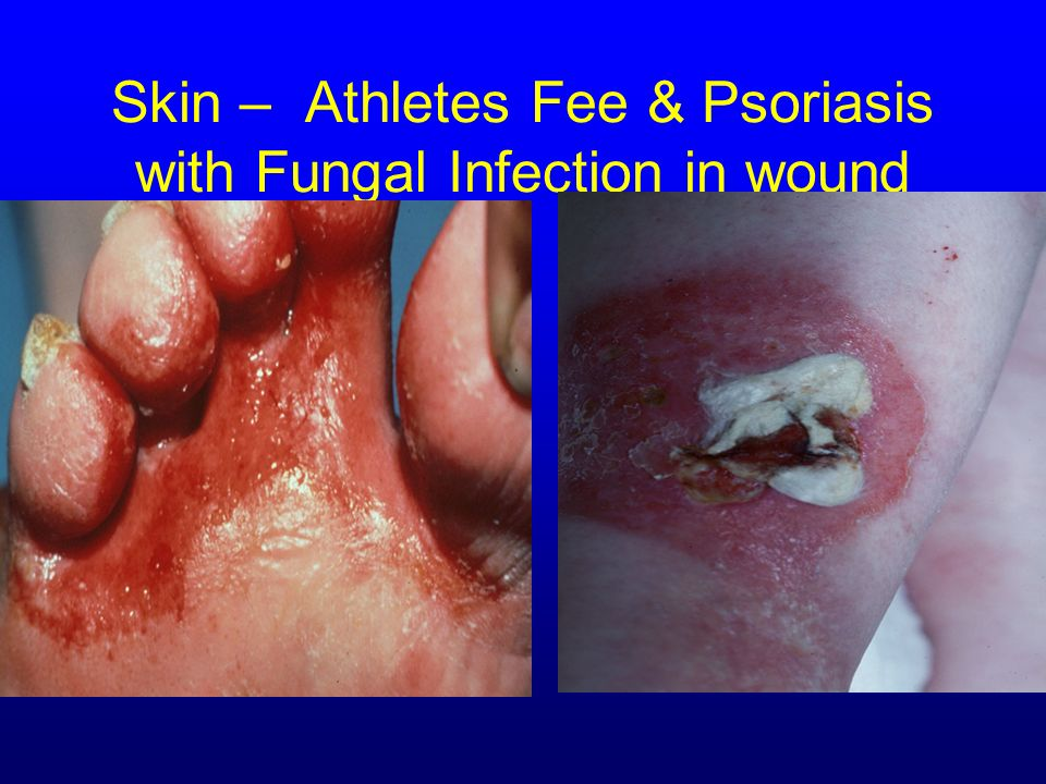 Skin – Athletes Fee & Psoriasis with Fungal Infection in wound