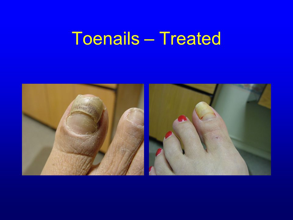 Toenails – Treated Courtesy of Dr. Barbara J. Aung, DPM,CWS