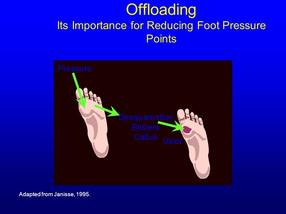 Offloading Its Importance for Reducing Foot Pressure Points