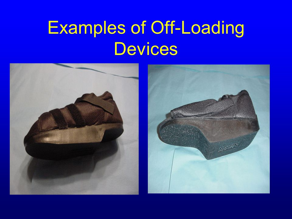 Examples of Off-Loading Devices
