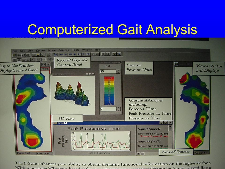 Computerized Gait Analysis