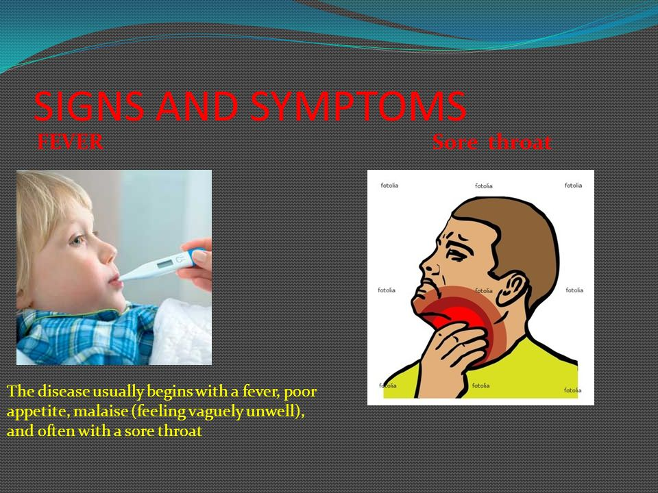 SIGNS AND SYMPTOMS FEVER Sore throat