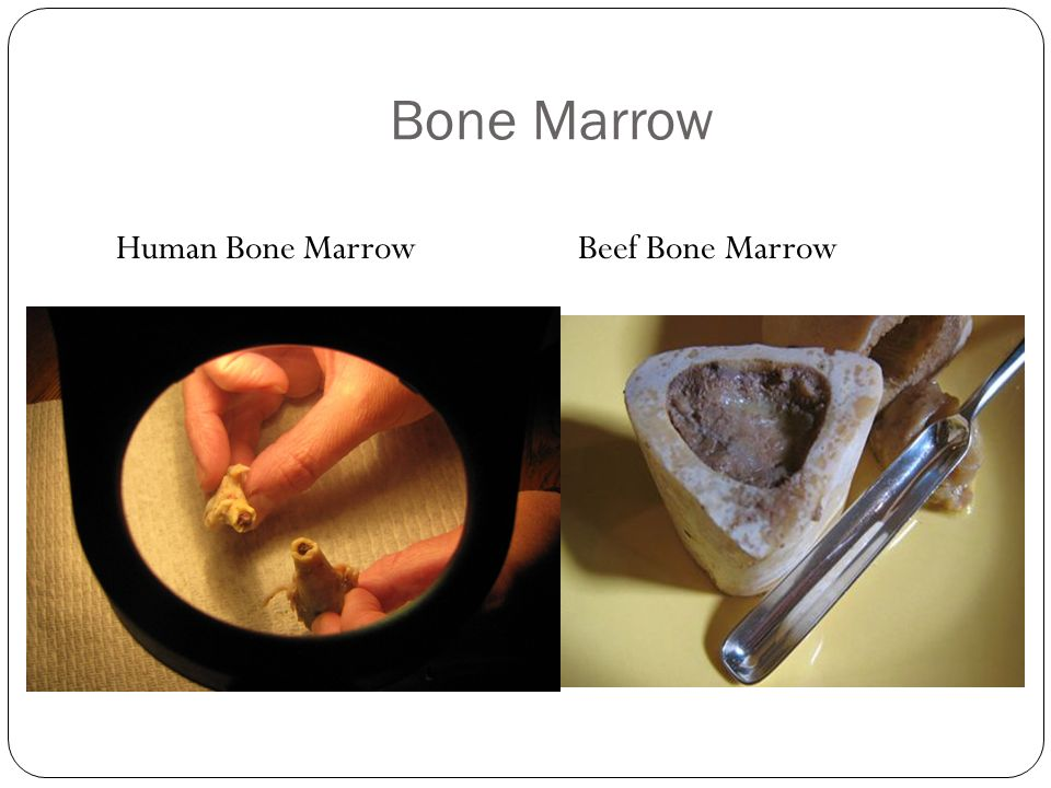 Bone Marrow Human Bone Marrow Beef Bone Marrow
