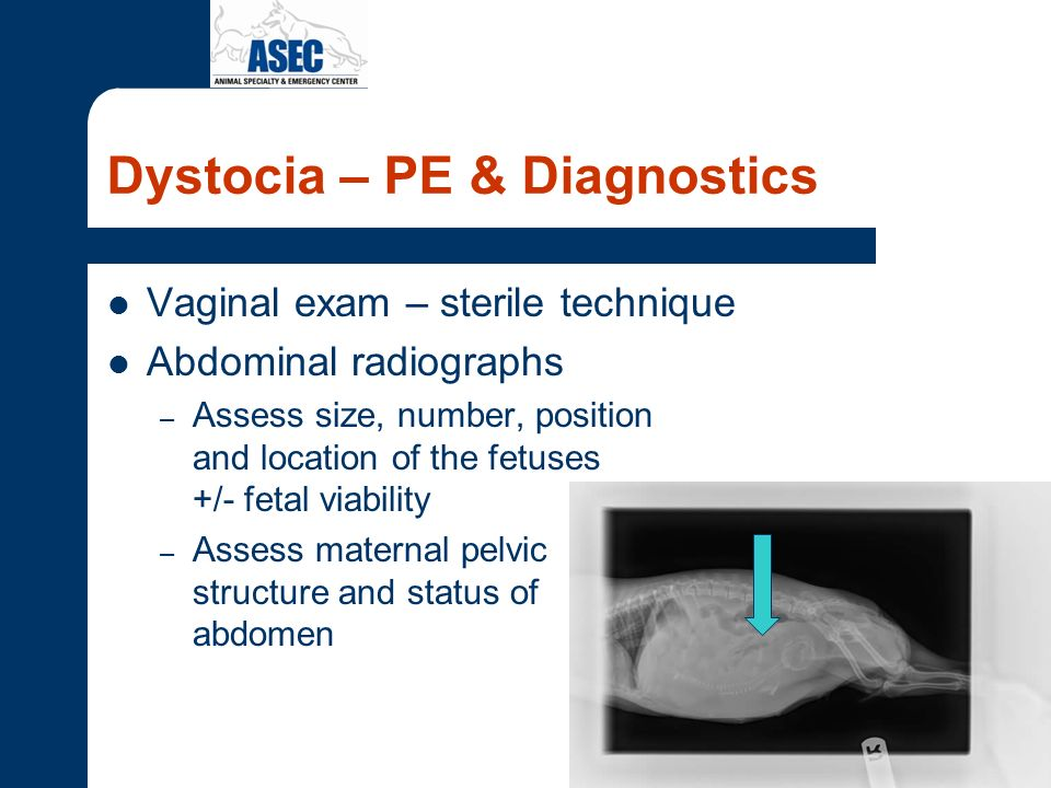 Dystocia – PE & Diagnostics