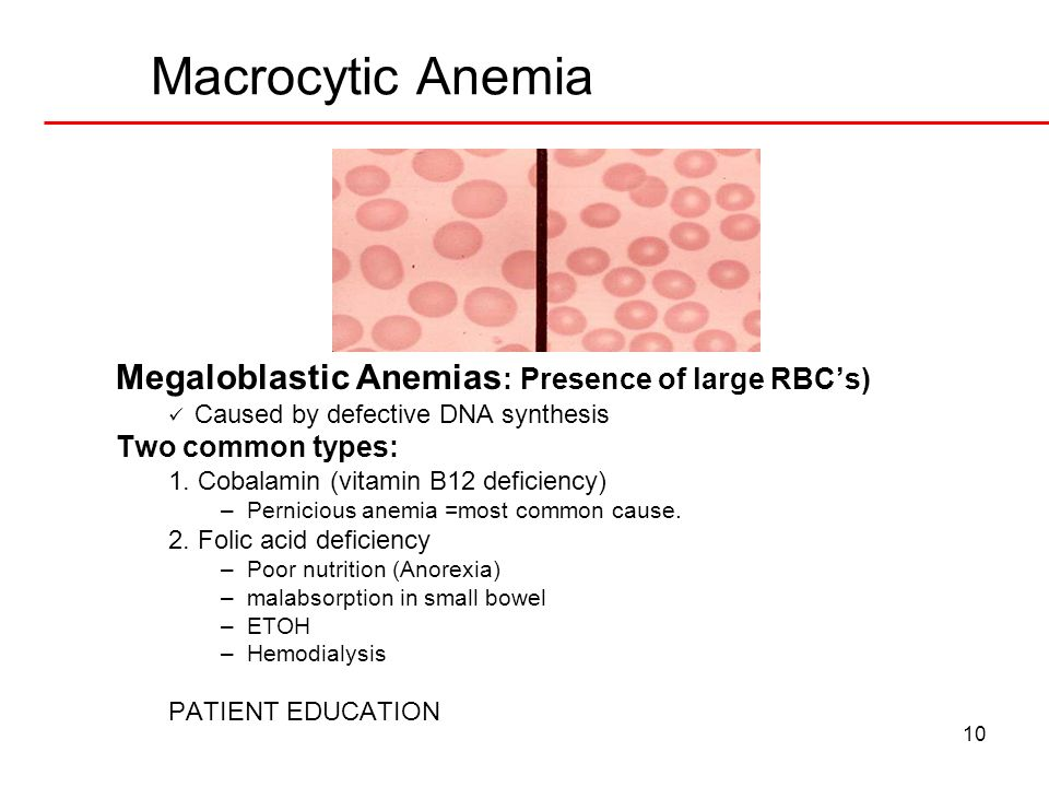 Macrocytic Anemia Megaloblastic Anemias: Presence of large RBC's)