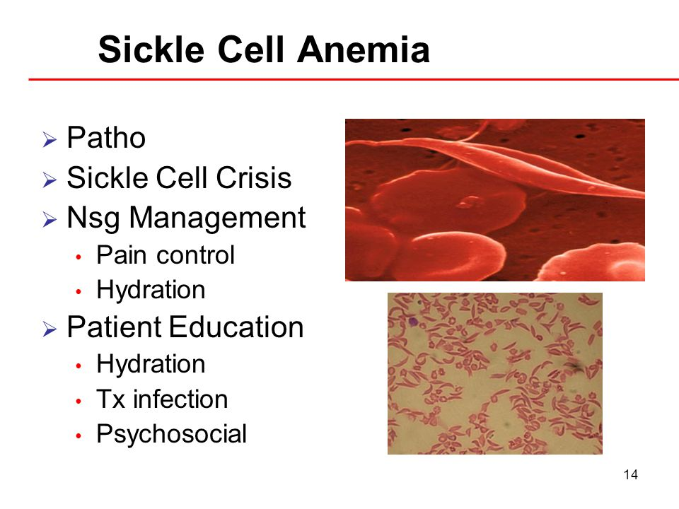 Sickle Cell Anemia Patho Sickle Cell Crisis Nsg Management