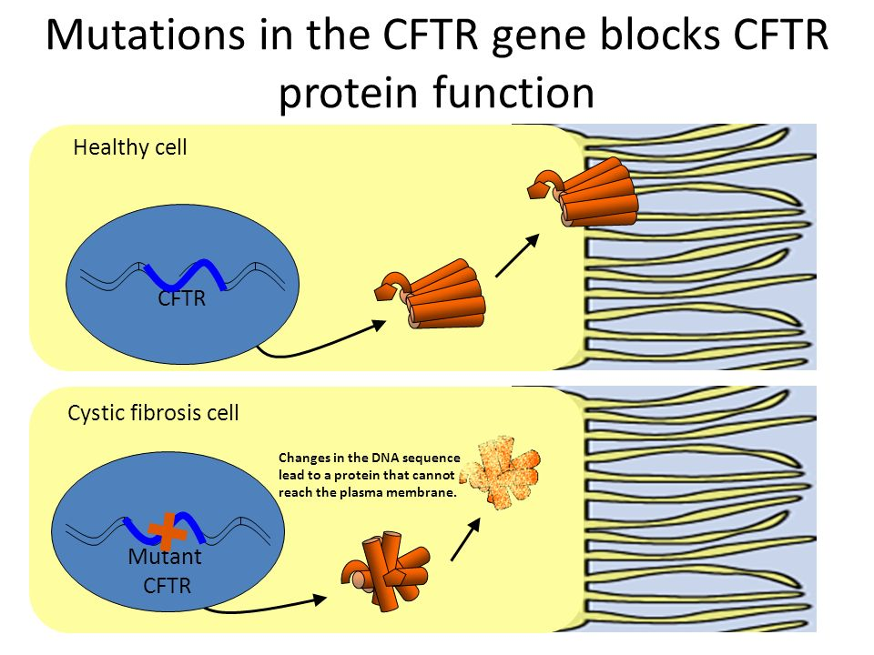 Mutations in the CFTR gene blocks CFTR protein function