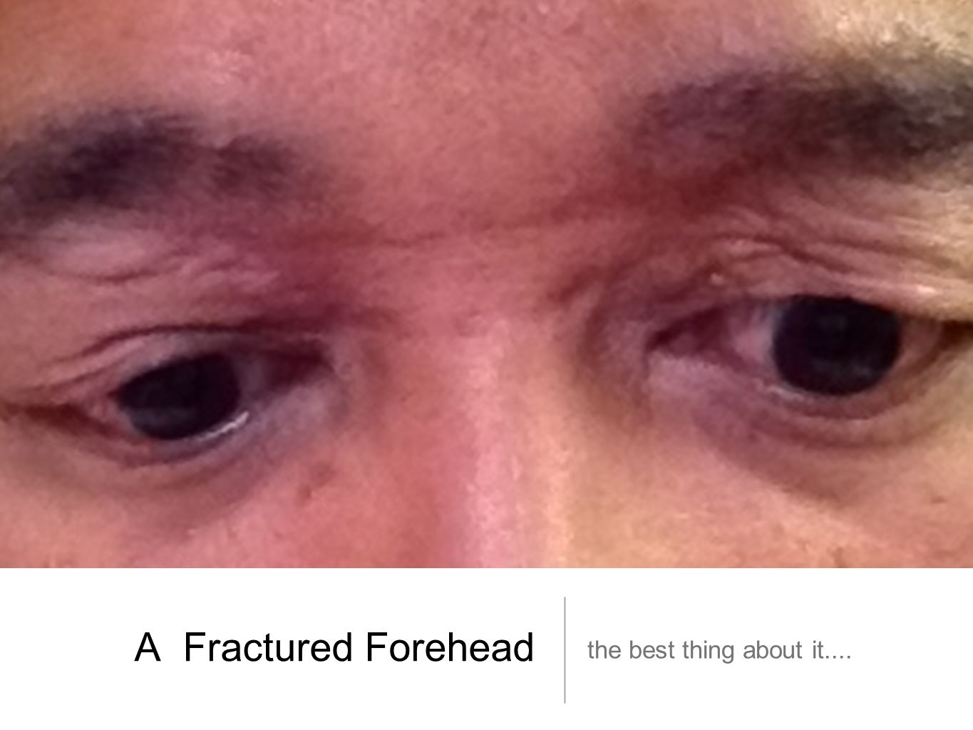 A Fractured Forehead the best thing about it....