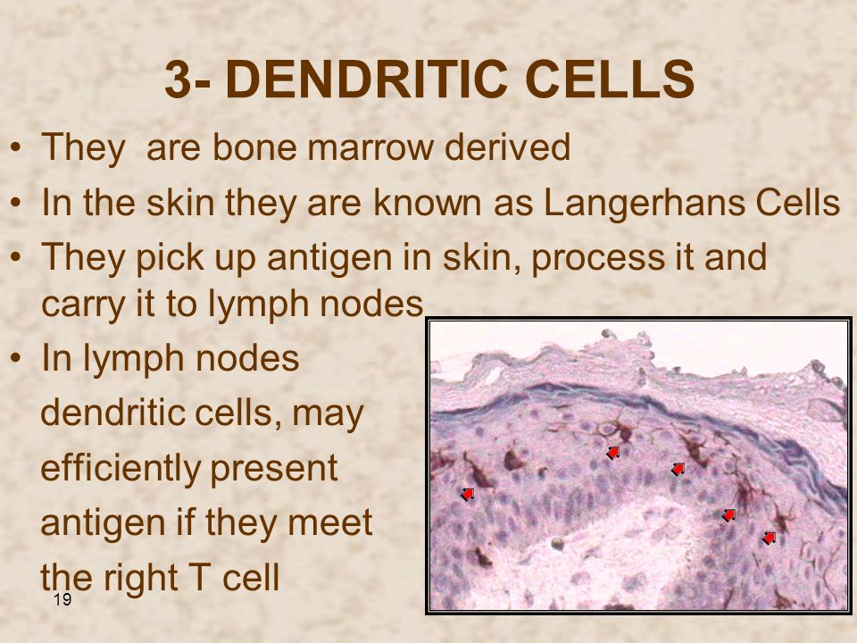 3- DENDRITIC CELLS They are bone marrow derived