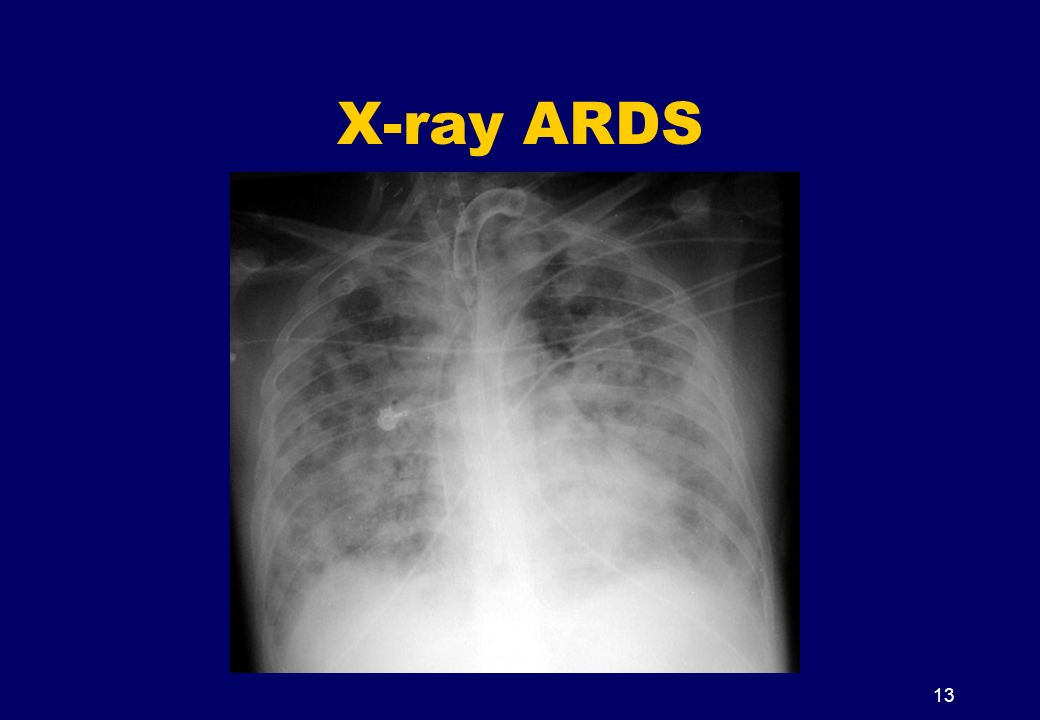 X-ray ARDS 13