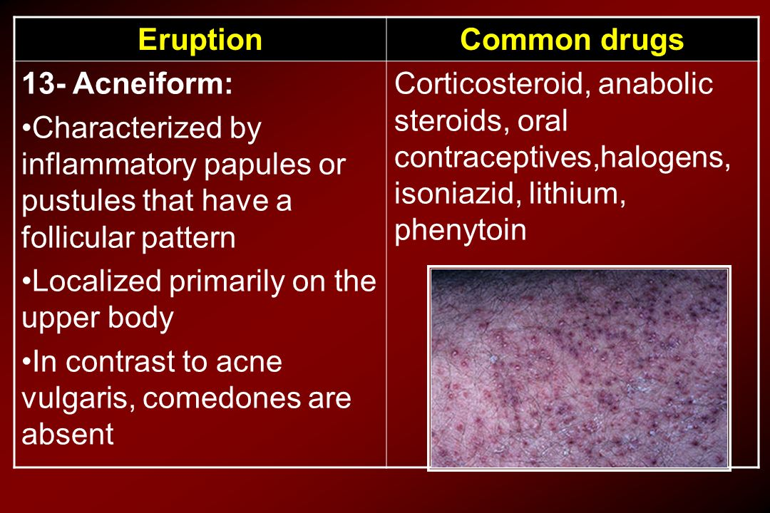 Common drugs Eruption. Corticosteroid, anabolic steroids, oral contraceptives,halogens, isoniazid, lithium, phenytoin.