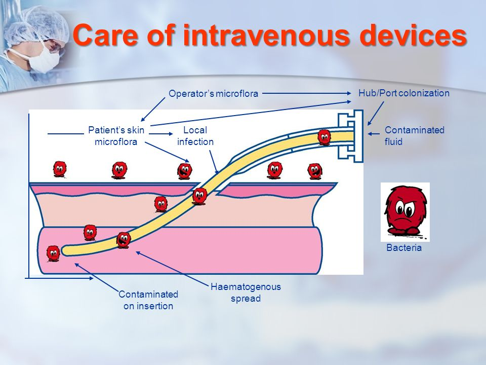 Care of intravenous devices