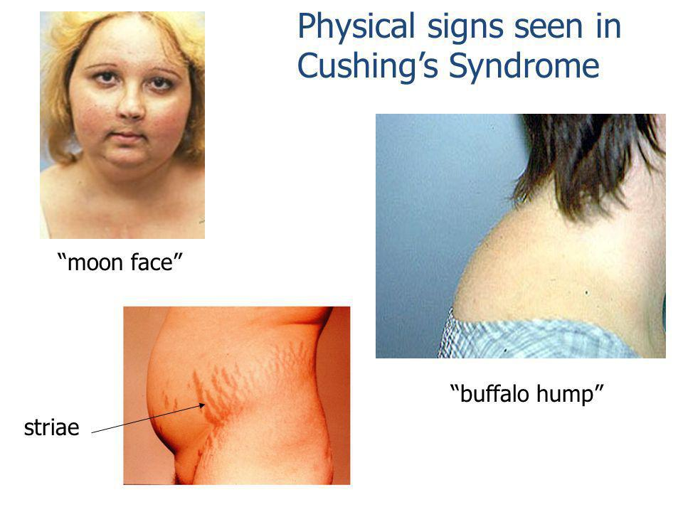 Physical signs seen in Cushing's Syndrome