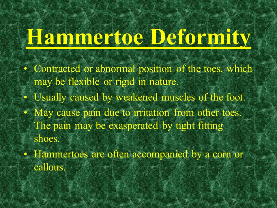 Hammertoe Deformity Contracted or abnormal position of the toes, which may be flexible or rigid in nature.