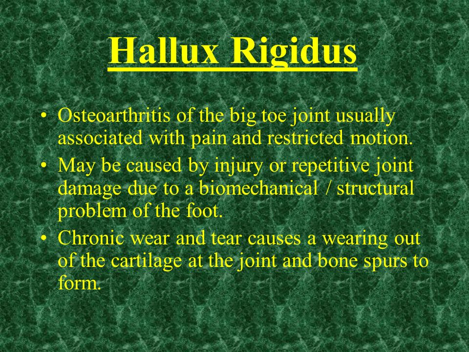Hallux Rigidus Osteoarthritis of the big toe joint usually associated with pain and restricted motion.